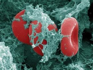 3441642439-periksa-darah-dapat-identifikasi-kanker-indung-telur